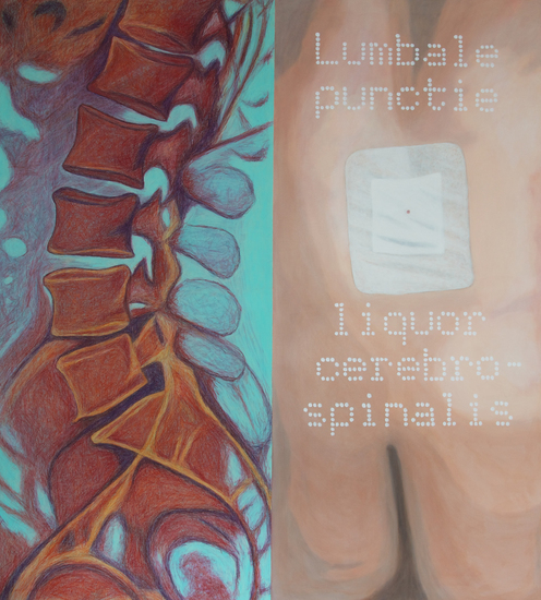 Look (at) inside me; Lumbale punctie, Liquor Cerebrospinalis